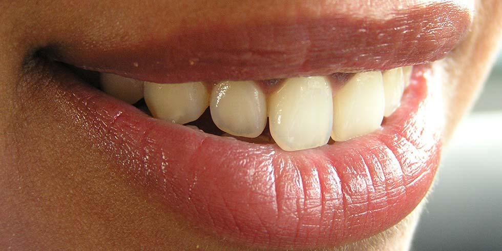 Clareadores dentais só com prescrição
