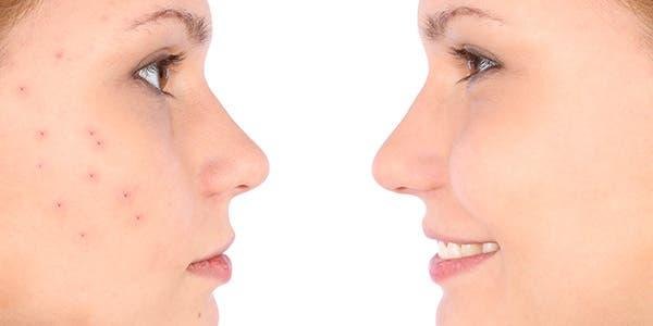 acnes e espinhas