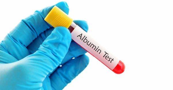 albumina-sangue