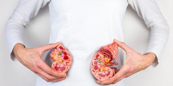 calculo renal