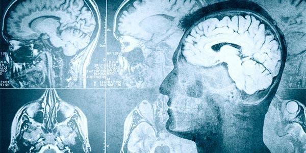 formato do cérebro