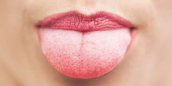 língua branca