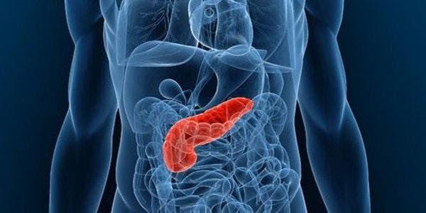 tumor pancreas