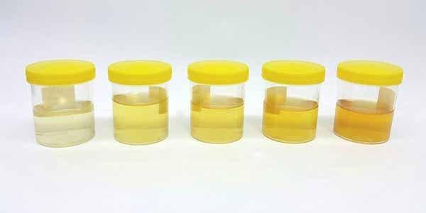 exame de urina