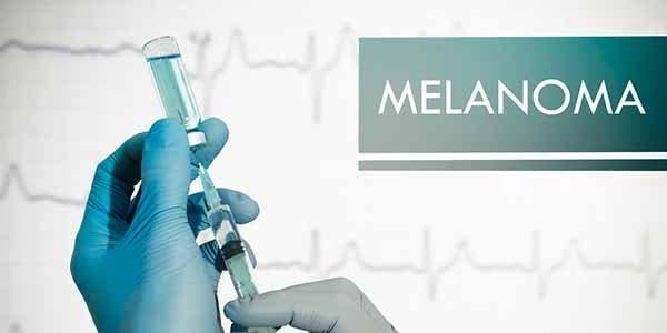 melanoma vacina