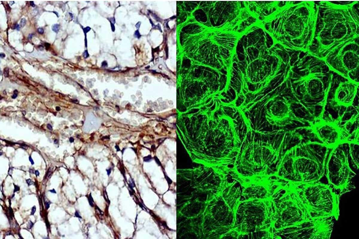 proteína que faz tumores crescer