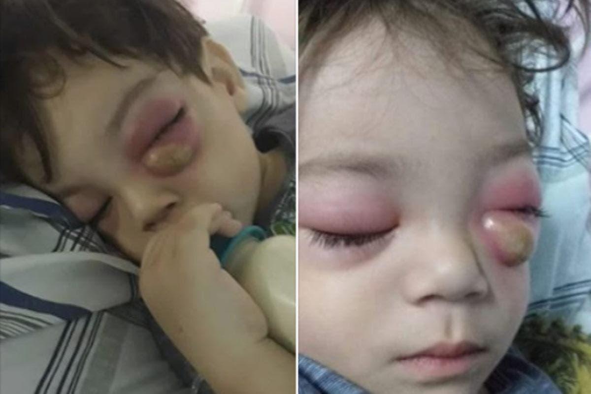 infecção nos olhos